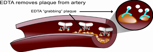 Remove Plaque from artery2